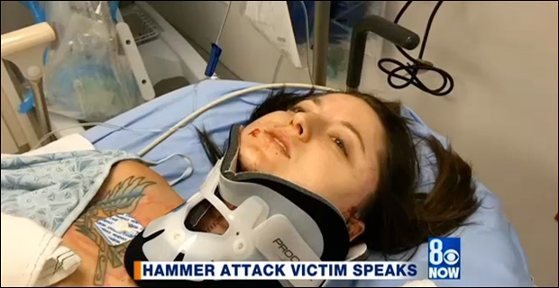 """27-year-old sledgehammer attack victim Nicole Thompson told news outlets she told attacker, """"I don't want to die."""" / Credit: 8NewsNow.com"""
