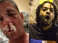 BREAKING: Pack Of BLM Thugs BRUTALLY Attack Veteran, Scream 2 CHILLING Words… Cops Respond By Doing THIS