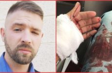 ALERT: Scumbag ANTIFA Terrorist STABS Innocent Man And Tries To Kill Him Because…