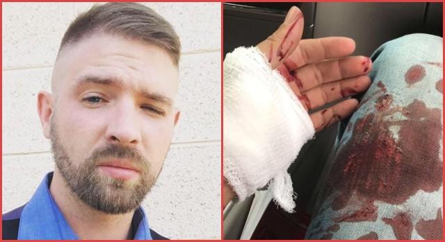 ALERT: Scumbag ANTIFA Terrorist STABS Innocent Man And Tries To Kill Him Because…